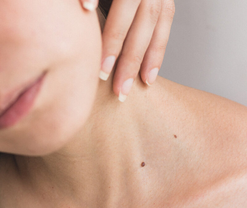 Noskova L. Thyroid gland treatment with SCENAR